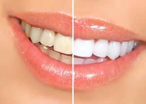 Zoom: For Safe And Effective Teeth Whitening